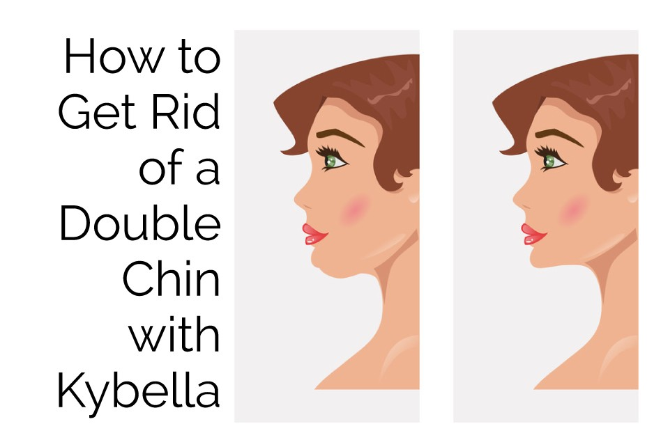 How To Get Rid Of A Double Chin With Kybella