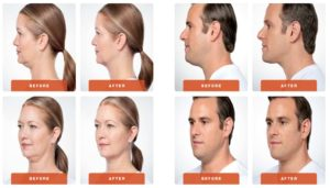 kybella how to get rid of a double chin