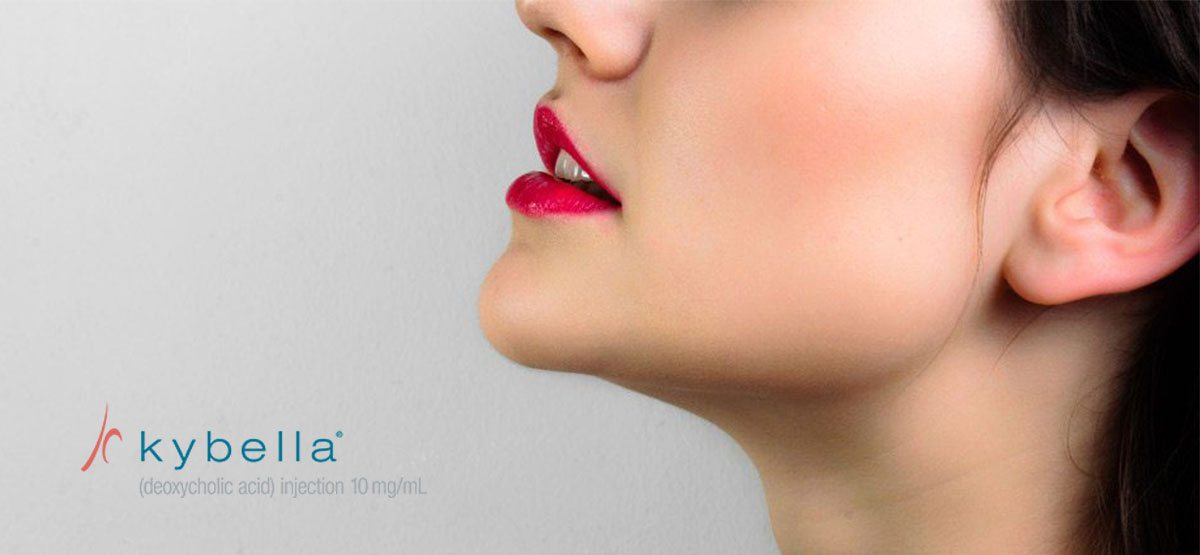 kybella double chin covington