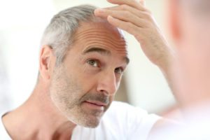 platelet rich plasma hair loss