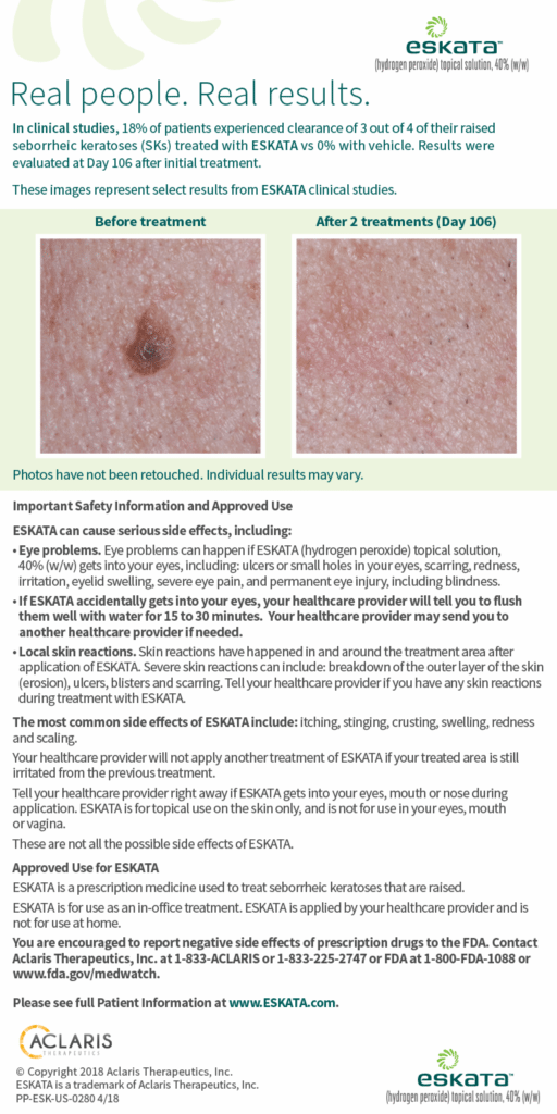 eskata before after seborrheic keratoses