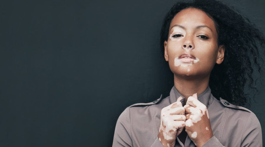 Vitiligo: Vital Facts