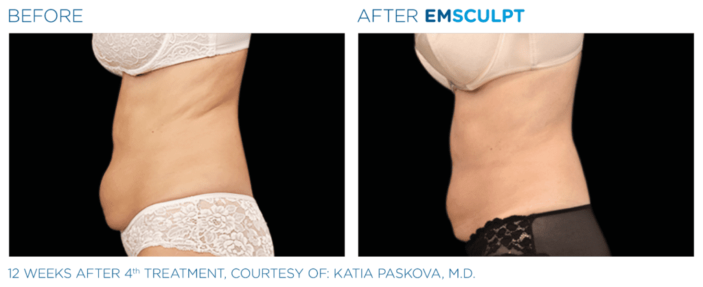 emsculpt vs coolsculpt results