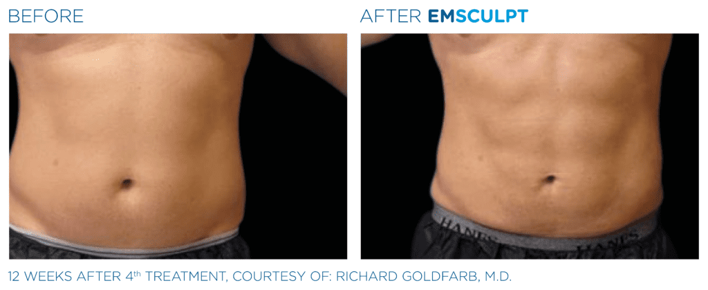 what is emsculpt? check out these results!